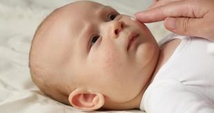 bebé con brote de piel atópica